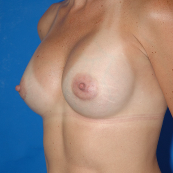 Breast Augmentation with Sientra Anatomical Shaped Silicone Implants 350cc after 3850945