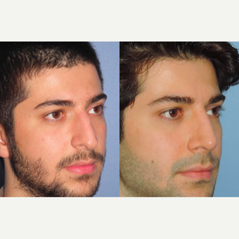 25-34 year old man treated with Rhinoplasty before 3521671