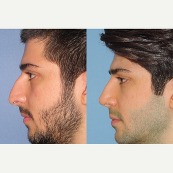 25-34 year old man treated with Rhinoplasty after 3521671