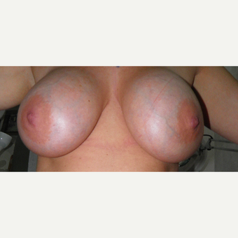 25-34 year old woman treated with Breast Implant Revision before 3325402