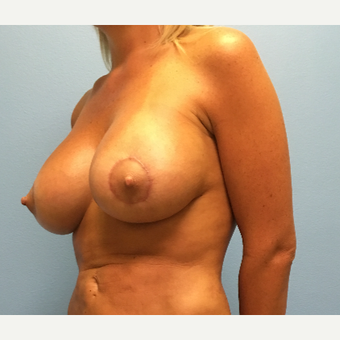 29 year old woman treated with Breast Lift with Implants after 3065455