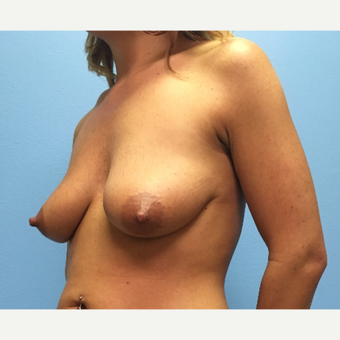 29 year old woman treated with Breast Lift with Implants before 3065455