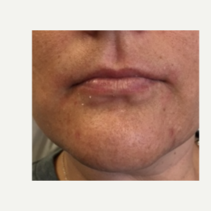 35-44 year old woman treated with Lip Augmentation before 3528396