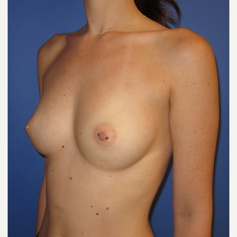 18-24 year old woman treated with Breast Implants (one week after surgery) before 3180543