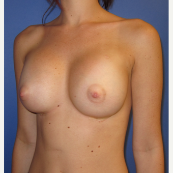 18-24 year old woman treated with Breast Implants (one week after surgery) after 3180543