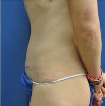 35-44 year old woman treated with Mini Tummy Tuck after 3816445