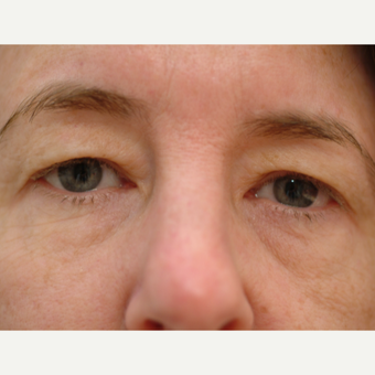53 year old woman treated with Eyelid Surgery