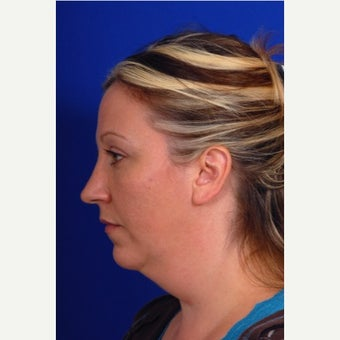 35-44 year old woman treated with Chin Liposuction