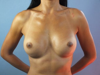 33 year old woman treated with Breast Augmentation after 1604428