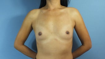 33 year old woman treated with Breast Augmentation before 1604428