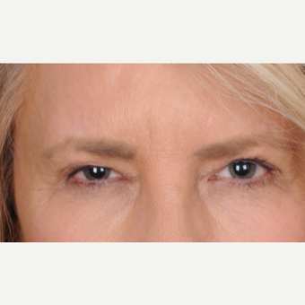 60 year old woman treated with upper blepharoplasty with ptosis repair before 3467111