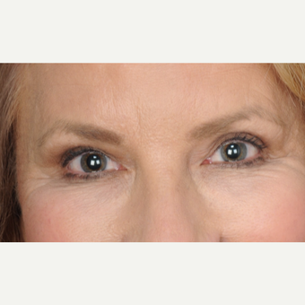 60 year old woman treated with upper blepharoplasty with ptosis repair after 3467111