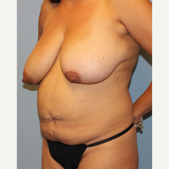 35-44 year old woman treated with Mommy Makeover before 3589437