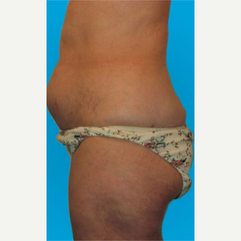 45-54 year old woman treated with Liposuction before 3275388