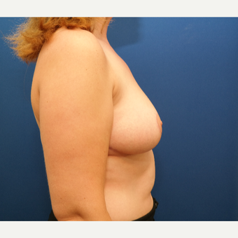 25-34 year old woman treated with Breast Reduction after 3109900