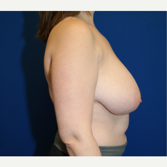 25-34 year old woman treated with Breast Reduction before 3109900