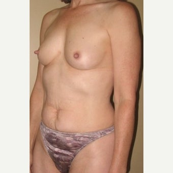55-64 year old woman treated with Mommy Makeover