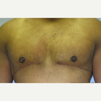 26 year old man treated with Male Breast Reduction