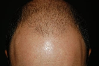 hair transplantation using Neograft before 267720