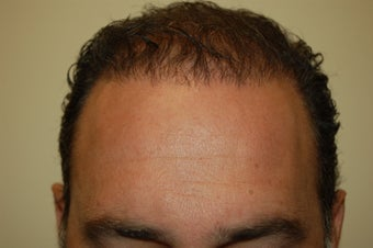 hair transplantation using Neograft after 267720