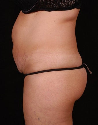 Abdominoplasty before 96413