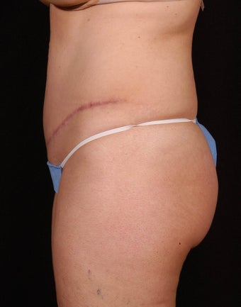 Abdominoplasty after 96413