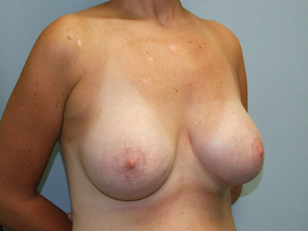 Breast Lift after 1342639