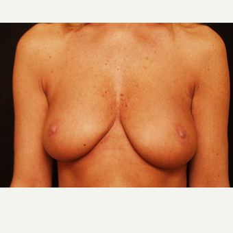 55-64 year old woman treated with Breast Augmentation before 3523759