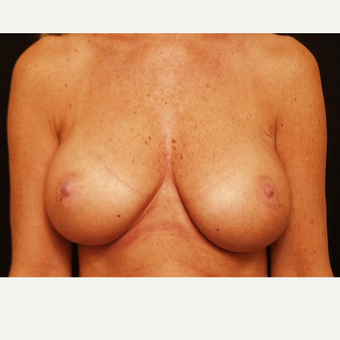 55-64 year old woman treated with Breast Augmentation after 3523759