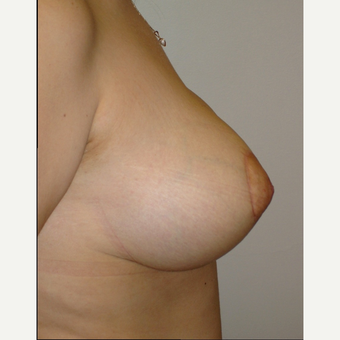 18-24 year old woman treated with Breast Lift after 2848875
