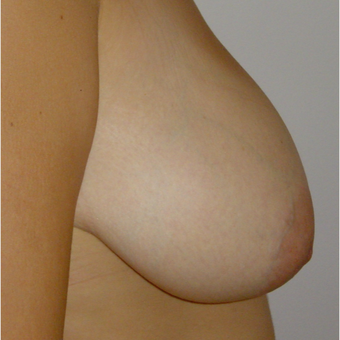 18-24 year old woman treated with Breast Lift before 2848875