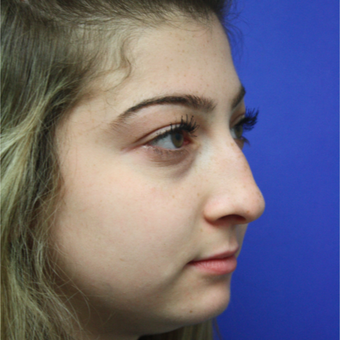 18-24 year old woman treated with Rhinoplasty before 3400334