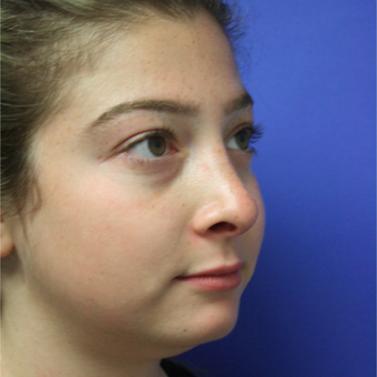 18-24 year old woman treated with Rhinoplasty after 3400334