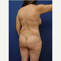 55-64 year old woman treated with Body Lift after 2058229