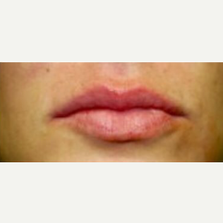 18-24 year old woman treated with Juvederm after 3238858