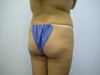 Butt Implants before 833339