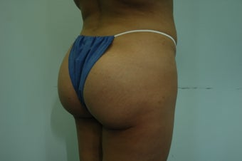 Butt Implants after 833339