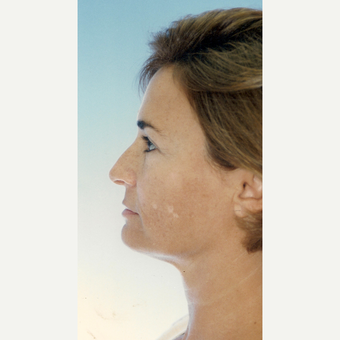 45-54 year old woman treated with Facelift before 3272052