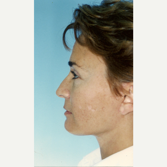 45-54 year old woman treated with Facelift after 3272052