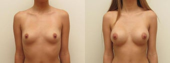 Breast Augmentation Silicone Implants  before 1403886