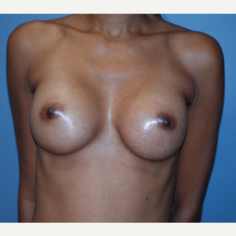 25-34 year old woman treated with Breast Augmentation after 3749131