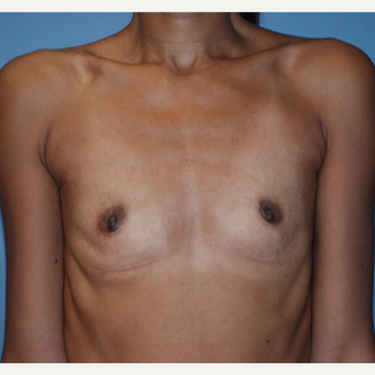 25-34 year old woman treated with Breast Augmentation before 3749131