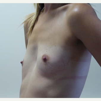 25-34 year old woman treated with Breast Implants before 3764951