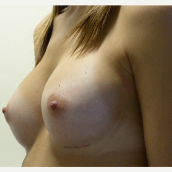 25-34 year old woman treated with Breast Implants after 3764951