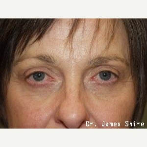 55-64 year old woman treated with Eyelid Surgery after 1545879