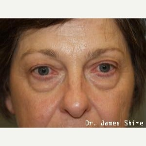 55-64 year old woman treated with Eyelid Surgery before 1545879