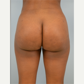 29 year old woman treated with Brazilian Butt Lift after 3432358