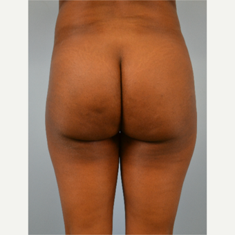 29 year old woman treated with Brazilian Butt Lift before 3432358