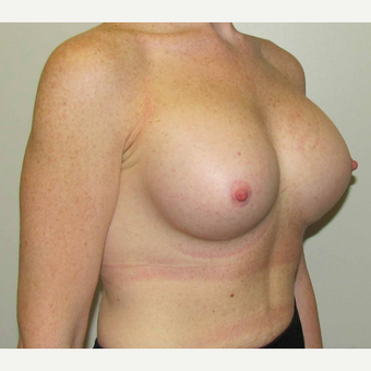 25-34 year old woman treated with Breast Implants after 3030481
