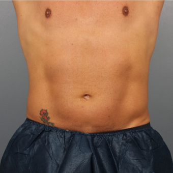 39 year old man treated with CoolSculpting to the abdomen and flanks after 3507332